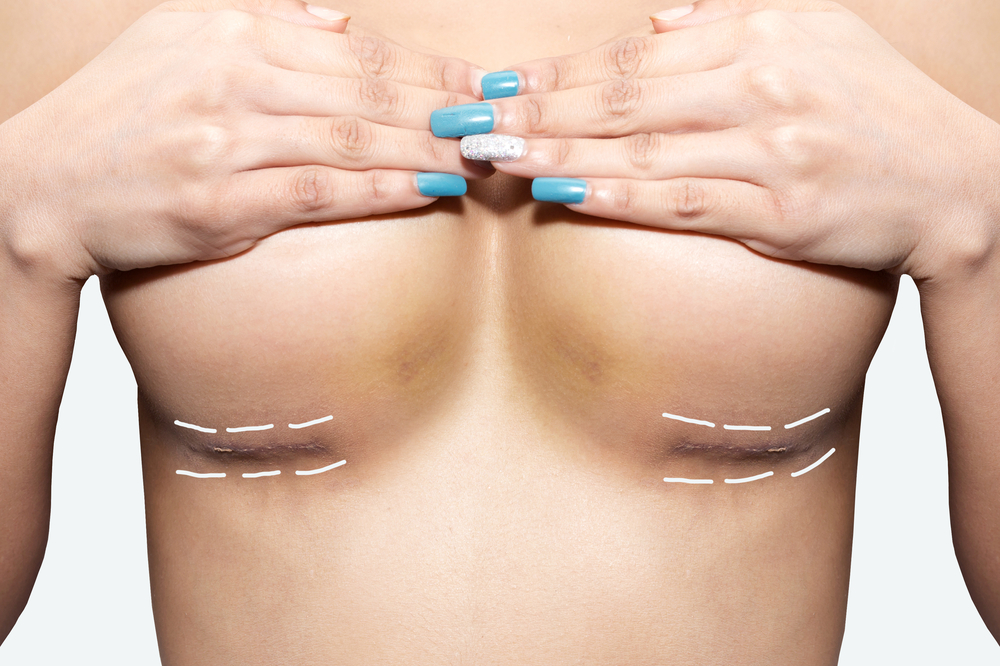 Know the facts of breast augmentation recovery stages